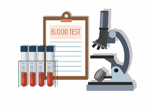 Blood Test Illustration