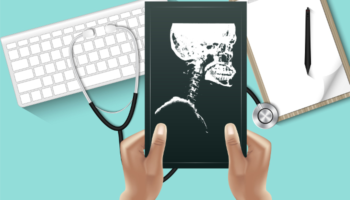 Doctor hands is holding X-Ray film for examining on table desktop with personal equipment., Healthcare and occupation concept, Vector, Illustration. (Doctor hands is holding X-Ray film for examining on table desktop with personal equipment., Healthcar